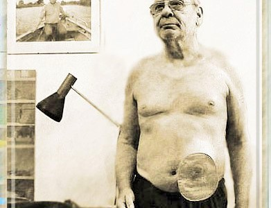 Foto: Mann mit kleinem Beutel am linken unteren Bauch