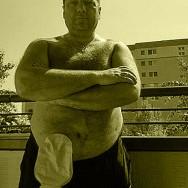 Foto: Stomaträger mit freiem Oberkörper und Beutel am Bauch