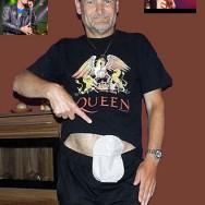 Foto: Queen-Fan zeigt seinen Stoma-Beutel am Bauch