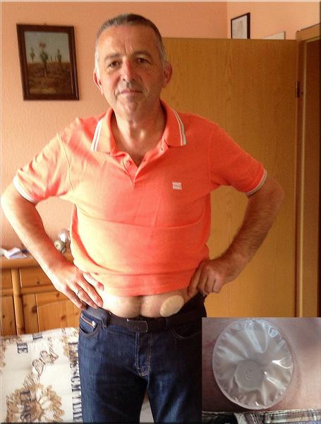 Foto: Stomaträger zeigt seine Stoma-Kappe am Bauch, wie sie nach einer Irrigation getragen wird