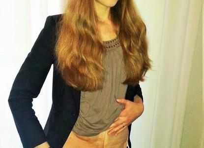 Foto: junge Stomaträgerin trägt bauchfrei und zeigt ihren Stoma-Beutel