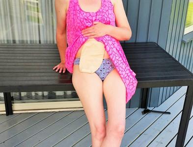 Foto: Stomaträgern ist im Badeurlaub am Meer, hebt ihr Badekleid und zeigt ihren Stoma-Beutel
