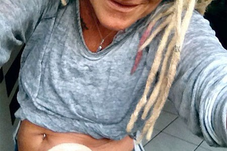 Foto: Stomaträgerin trägt bauchfrei und zeigt ihren Beutel am Bauch