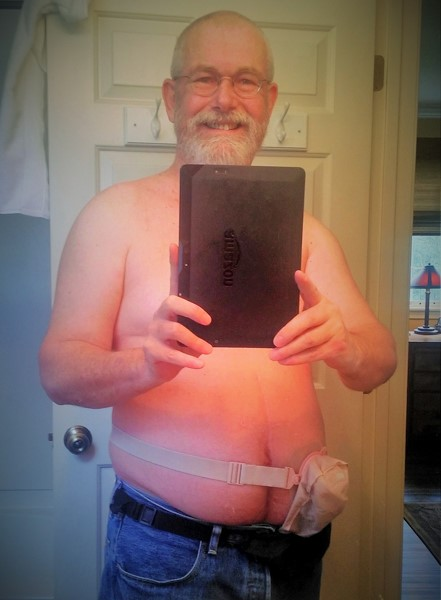 Foto: Stomaträger aus den USA macht ein Selfie und zeigt uns seinen Beutel am Bauch