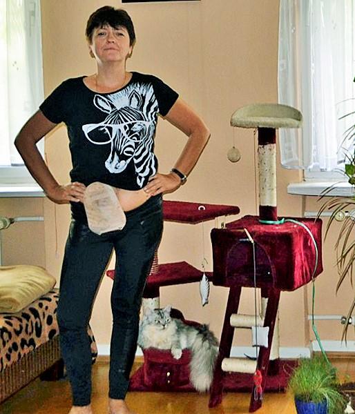Foto: Stomaträgerin und ihre Katze, sie zeigt ihren Beutel am Bauch