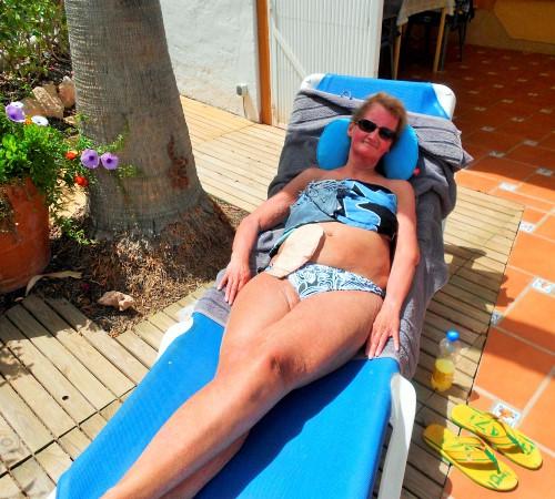 Foto: Stomaträgerin zeigt beim Sonnenbad ihren Beutel am Bauch