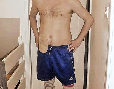 Foto: Stomaträger zeigt seinen Bauch mit Stomabeutel