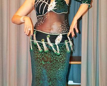 Foto: Stomaträgerin zeigt ihren Beutel beim Bauchtanz