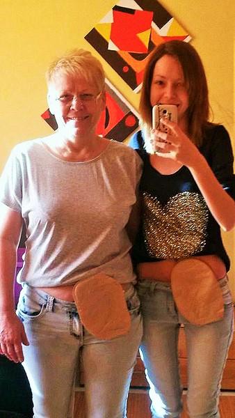 Foto: Mutter und Tochter zeigen gemeinsam ihren Stoma-Beutel