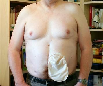 Foto: Stomaträger zeigt sich mit seinem Kolostoma-Beutel am Bauch