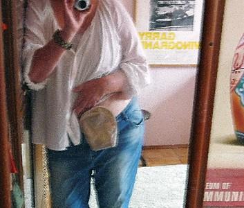 Foto: Stomaträgerin zeigt ihren Stomabeutel am Bauch