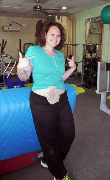 Foto: Physiotherapeutin zeigt ihren Stomabeutel am Bauch
