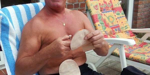 Foto: Stomaträger zeigt seinen Beutel beim Sonnenbad