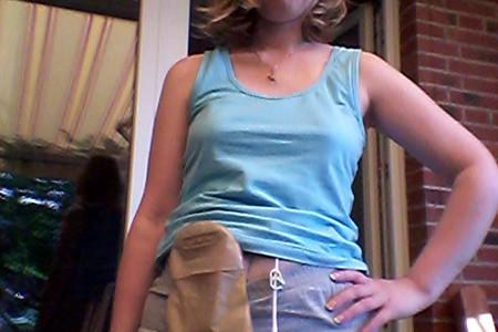 Foto: Stomaträgerin zeigt ihren Beutel Stomabeutel am Bauch