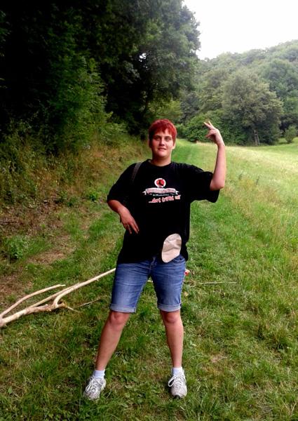 Foto: Stomaträgerin zeigt auf einer Wanderung ihren Stomabuetel am Bauch