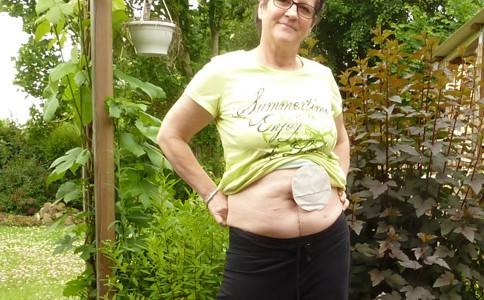 Foto: Stomaträgerin zeigt ihren Minibeutel am Bauch