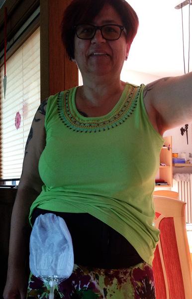 Foto: Stomaträgerin zeigt ihren Beutel am Bauch