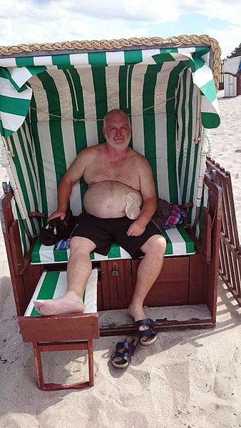 Foto: Stomaträger genießt seinen Urlaub im Strandkorb mit Stomabeutel am Bauch