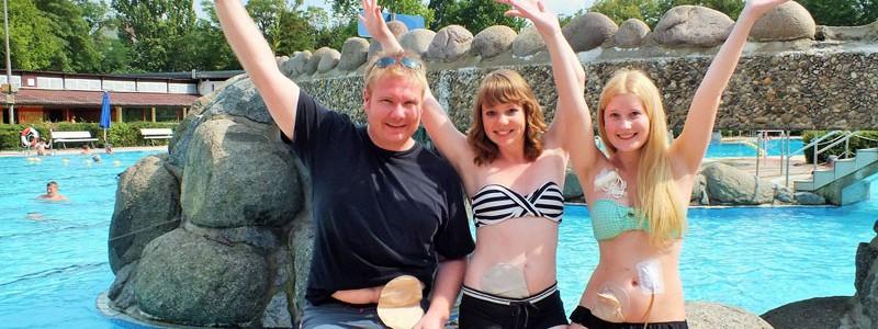Foto: Junge Stomaträger zeigen im Freibad ihren Stomabeutel